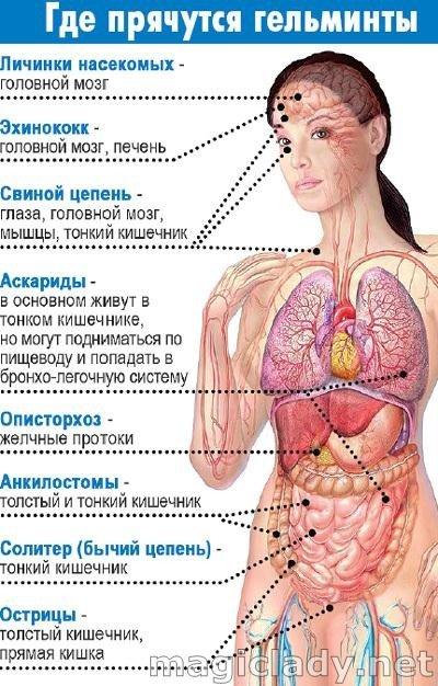 Паразиты в организме человека. Симптомы